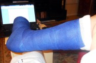 OK, here's the second cast I've had in six months with my Achilles surgery. Before this past June, I had never had a cast in my life. Now, I've had two in six months. Sigh. At least this one is in Gator blue.