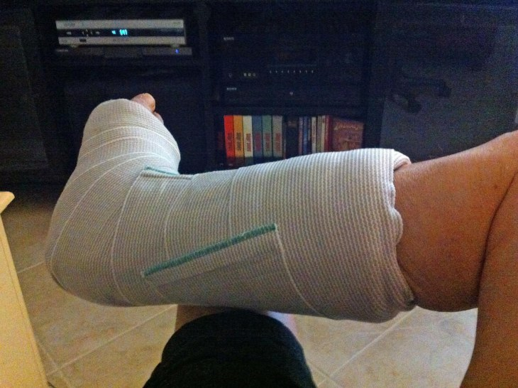 Well, here I go again. I had a third surgery on my Achilles tendon today (Aug. 27, 2015). It's an ongoing effort to correct the post-operative issues after a repair of a ruptured tendon. No cast this time and another surgery is expected. Sigh.